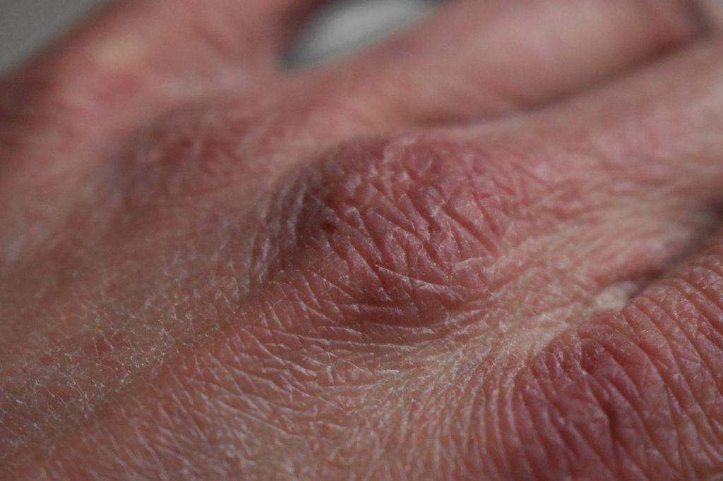 加齢による乾燥肌の原因と対策|乾燥肌対策に輻射式冷暖房がおすすめ